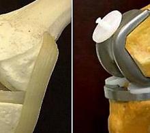 CFM publica resolução que disciplina a prescrição de materiais implantáveis